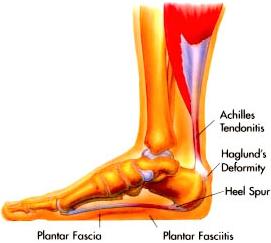 Pain in bottom of foot when walking